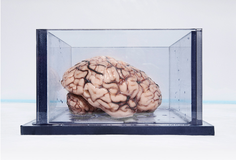 The Most Famous Brain In The World