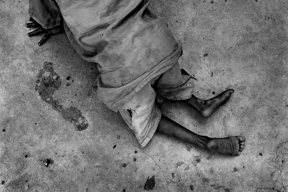 Polio's Imprint
